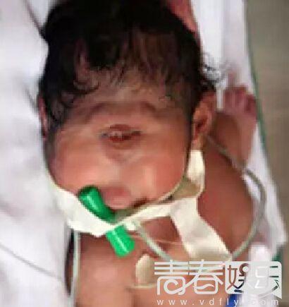 一只眼睛的畸形婴儿